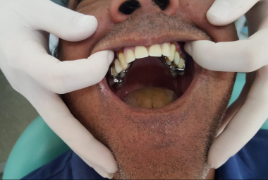 Cuiabá credencia laboratórios via Ministério da Saúde e passa a ofertar mais de 800 próteses dentárias por mês