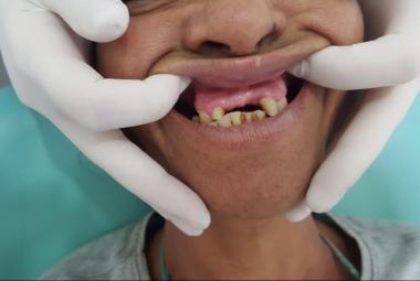 Consultório odontológico do Pedra 90 realiza mais de 3,5 mil atendimentos às pessoas em situação de rua